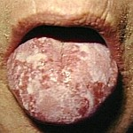 Oral Gonorrhea