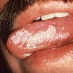 Oral Hairy Leukoplakia
