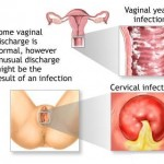 Female Yeast infection