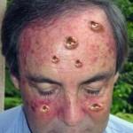 Skin Cancer Symptom