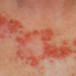 Skin Cancer Type