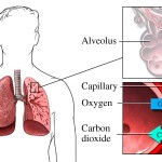 Fluid in lungs