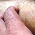 Itchy Rectum and Anus