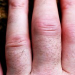 Juvenile Rheumatoid Arthritis