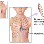 Sternum Pain