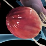 Bladder Infection Symptoms
