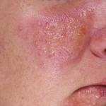 Guttate Psoriasis