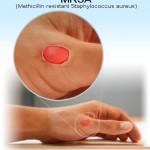 MRSA Infection