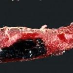 Placental Abruption