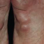 Plantar Fibromatosis