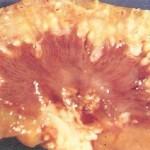 Pyelonephritis
