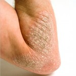 Scaly Skin Patches