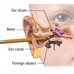 Ear Canal Infection