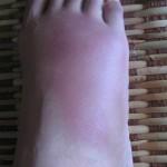 Swelling Feet