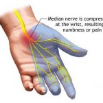 Numbness in Fingers