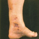 Polyarteritis Nodosa