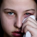 Itchy Eyelids