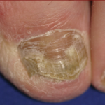 Ridges on Fingernails
