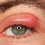 Eyelid Swelling