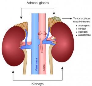 Adrenal Gland Tumor
