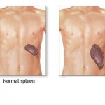 Enlarged Spleen