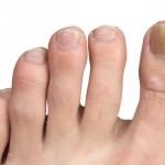 Fingernail Infection
