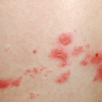 Red Itchy Bumps on Skin