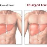 Enlarged Liver