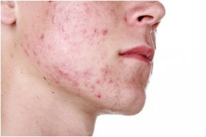 Adult Acne