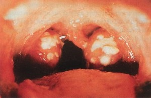 Gonorrhea Throat