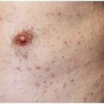 Grovers Disease