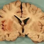 MELAS Syndrome
