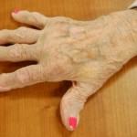 Arthritis In Hands