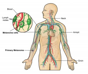 Lymph Nodes In The Body