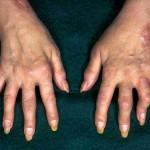 polyarthritis