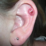 Cartilage Piercing Bump