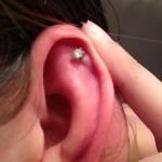Keloid Cartilage Piercing