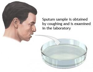 Sputum