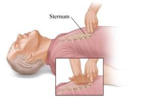 sternum popping