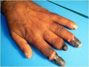 buerger's disease