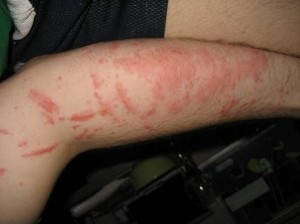 Home remedies for poison ivy