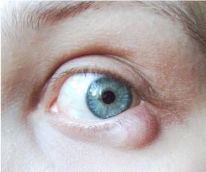 Eye Cyst