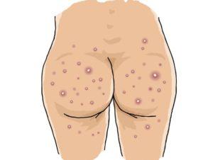 Boils on buttocks