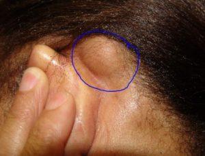 Lump Behind Ears