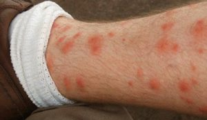 Red Dots On Legs