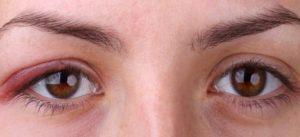 Rash Around Eyes