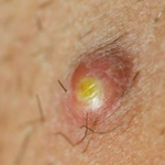 Cysts On Inner Thigh