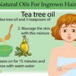 ingrown hair Home Remedies
