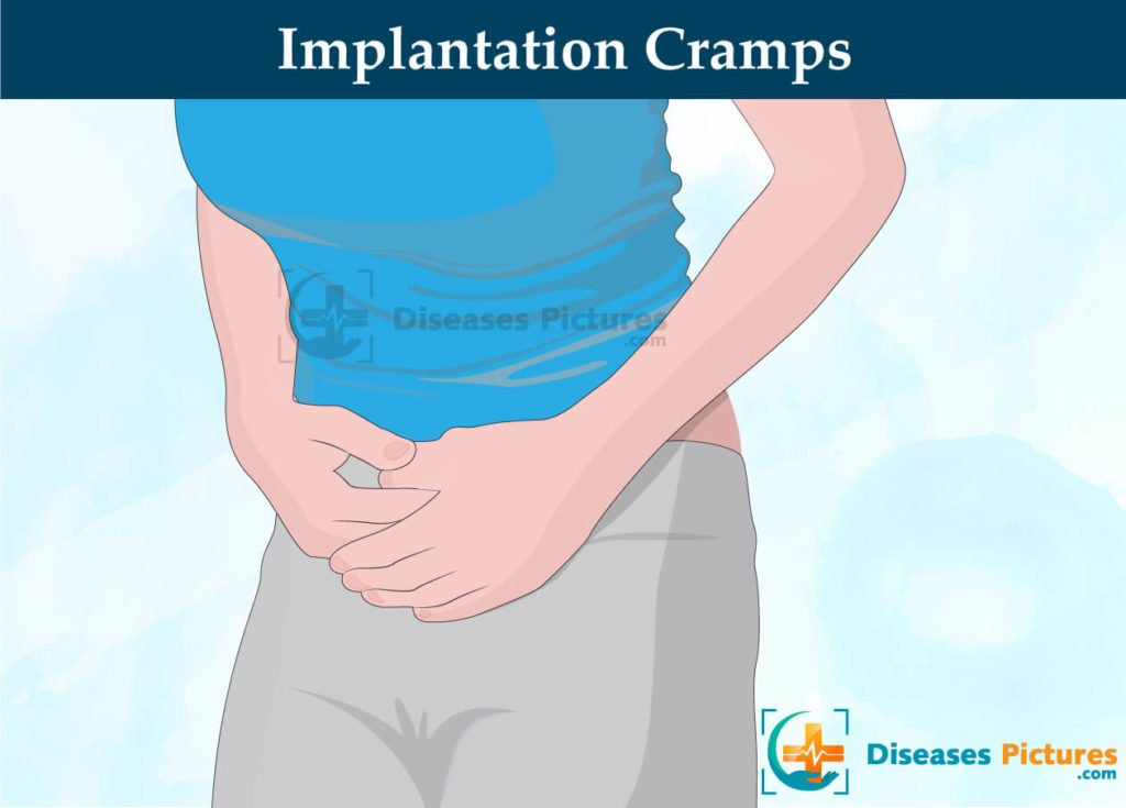 Implantation cramps