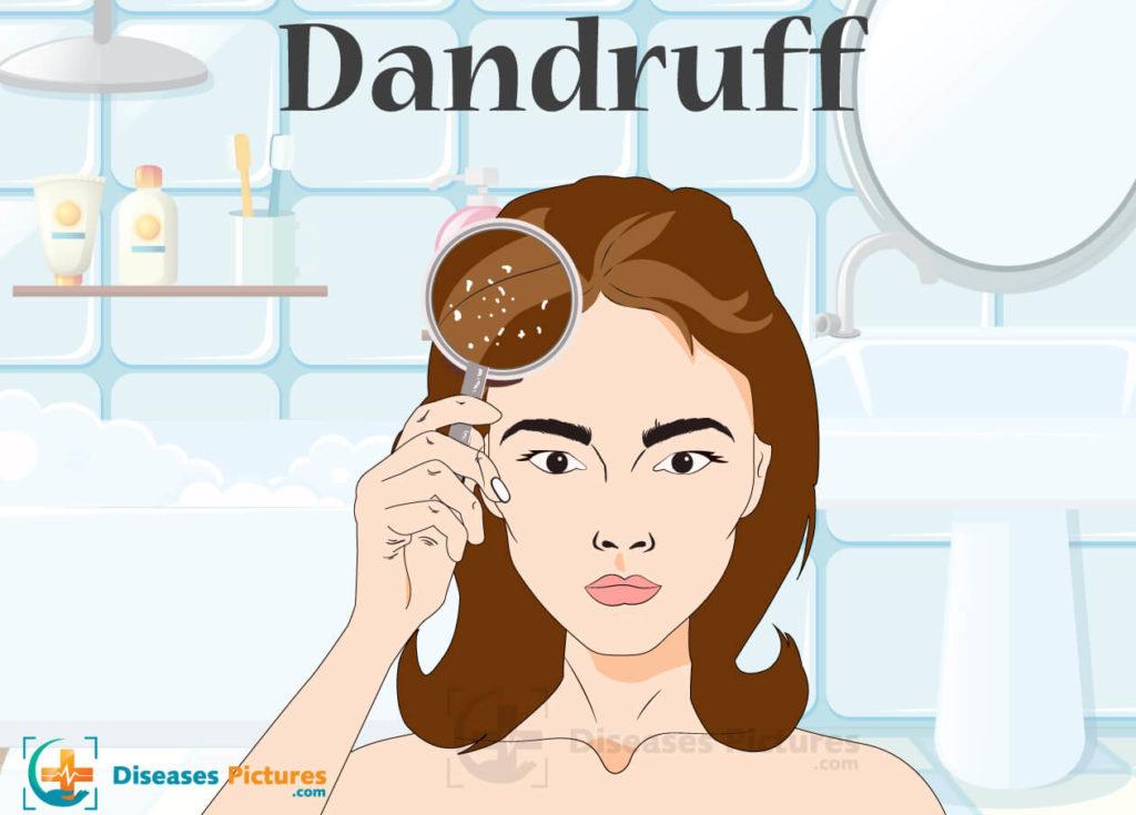 dandruff